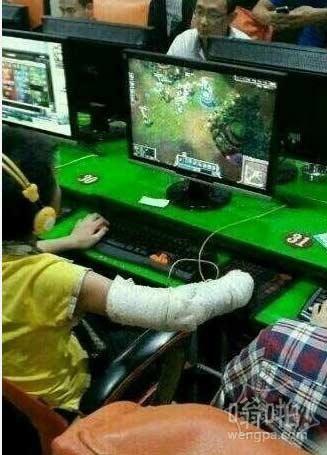 小学生负伤打游戏