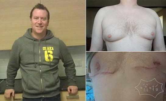 """我失去了我的乳头:39岁男子觉得自己乳房""""怪胎""""手术切除了乳房"""