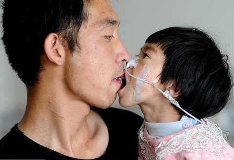 感动:山西父亲嘴对嘴喂食3岁患病女儿500天