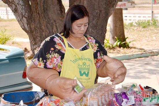 """泰国女子患巨手症:长出20公斤""""巨手"""" 仍坚持经营小摊维持生计"""