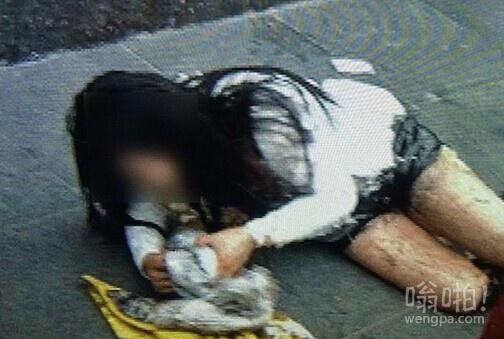 女子当街被中年女泼硫酸 生命垂危 疑正室抓小三