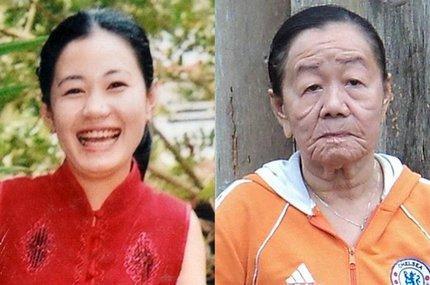 26岁美貌女为何一夜衰老成90岁老太 丈夫不离不弃