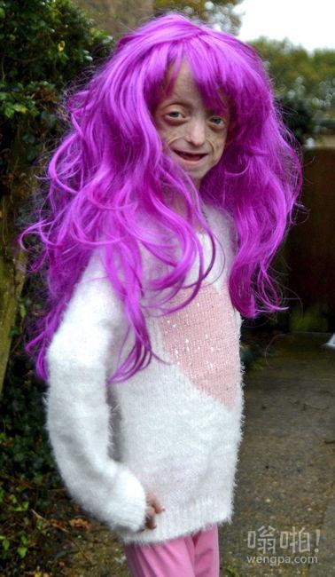 英11岁女童患早衰似80岁老太 戴假发上学遭老师禁止(多图)