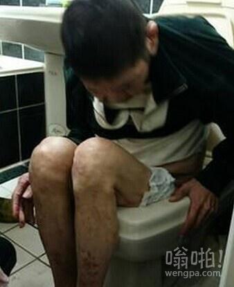 老翁上厕所被马桶卡住 消防员用沐浴乳助其脱困