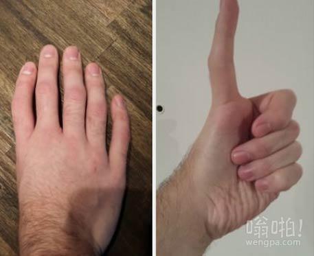 五个手指,拇指没有。