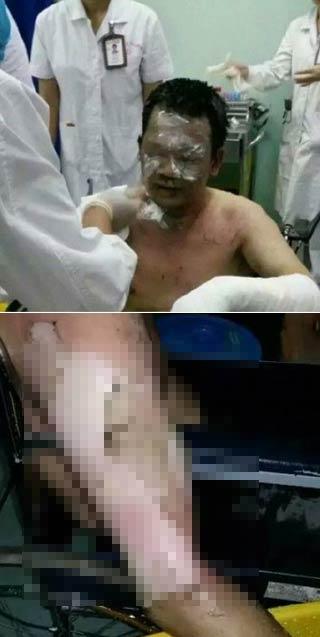 广西医科大医生被患者泼汽油烧伤30% 医生已成高危职业