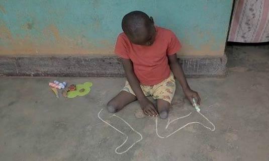 非洲断腿男孩用粉笔画腿
