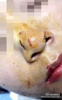 泰国女游客亲吻蟒蛇被咬 鼻子被咬破