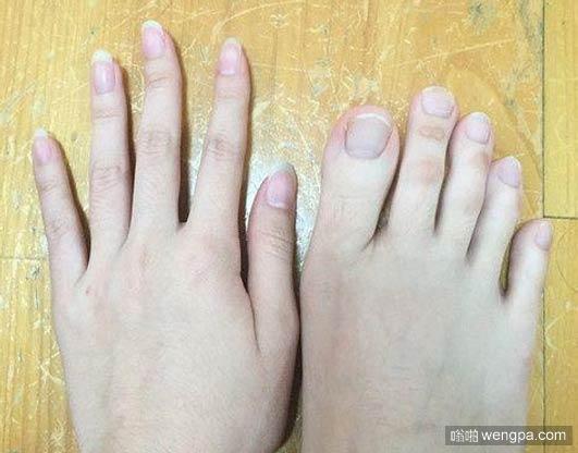 女大学生脚趾修长如手指 原来你是这样的脚趾