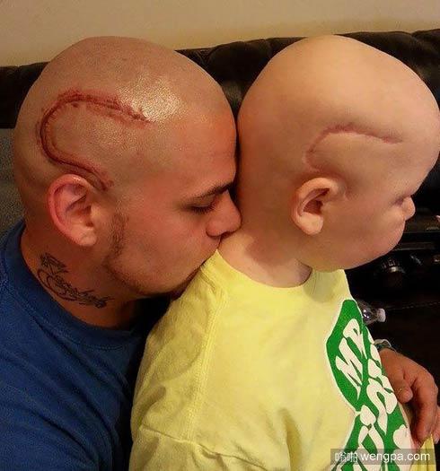 男孩脑瘤术后留疤 老爸纹同样图案激励儿子