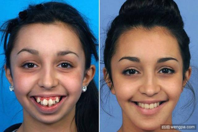 女孩8岁下巴停止生长 手术后美丽蜕变