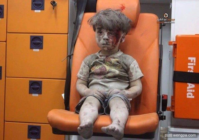 叙利亚5岁男童空袭中死里逃生 满脸是血不哭不闹