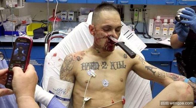 匕首插进男子的鼻子 - 嗡啪网