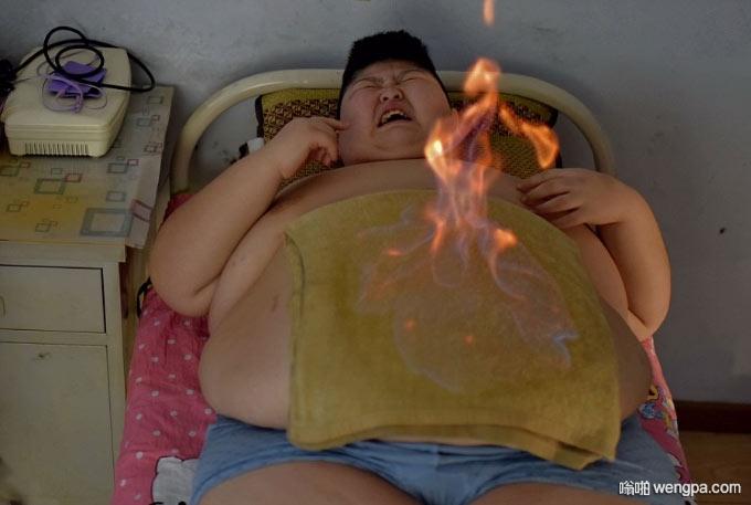 长春减肥中心 小胖接受了传统的中医火疗疗法