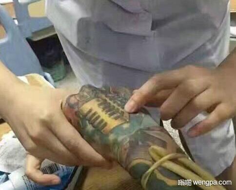 手背上的纹身让护士找不到静脉注射的血管了 搞笑图片 - 嗡啪网