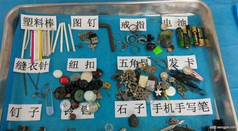 小孩吞下去的物件:图钉电池硬币磁铁啥都有