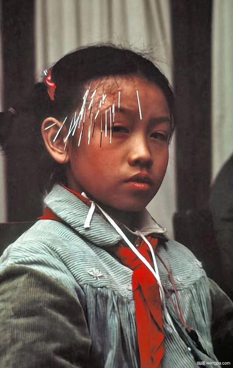 1978年  北京一家针灸室内进行针灸治疗的小学生  祝同学们开学大吉!