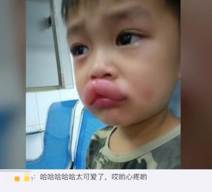 """小男孩偷吃葡萄 导致嘴巴过敏肿成""""嘟嘟嘴"""""""